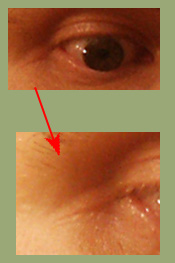 Joe and Birthmark Line Extending Past Outside Edge of Hazel Colored Eye